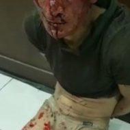 拘束され顔面や身体が血まみれな男性…何したらそこまでされるの?
