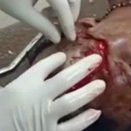 クマに襲われた女性の引き裂かれた部分を修復する