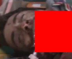 【閲覧注意】事故った意識不明のバイク運転手、顎がメチャクチャに…