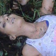車の事故に遭った美人な女性の上半身と下半身が…