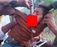 剥き出しの鉄筋が顎から貫通してしまった男の子を助け出す真っ最中