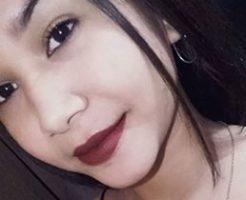 【閲覧注意】ピラニアに襲われた16歳の女の子の姿が悲惨すぎる件について…