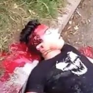 頭に重傷を負っている男性が死ぬ間際の動き