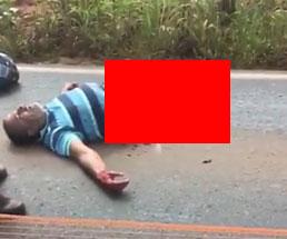 トラックに轢かれ下半身がグッチャグチャなのに生きているという男性