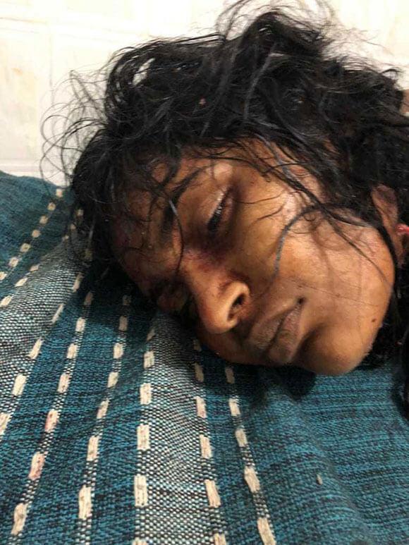 【閲覧注意】身体をバラバラにされ遺棄されていた女性が発見された結果…