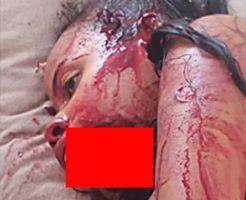 【閲覧注意】銃の乱射により殺された人たち、唯一生き残った女性も顎が…