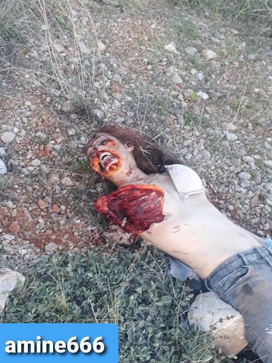 【閲覧注意】殺され犬に食われた状態で見つかった女の子の死体がこれ…