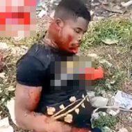 マチェーテで攻撃され口と右手首がグロいことになっちゃってる男性