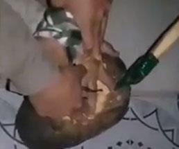 【閲覧注意】捕虜の男性が人差し指を斧で切断され叫び声が…その後の止血処置はもっとやばい…