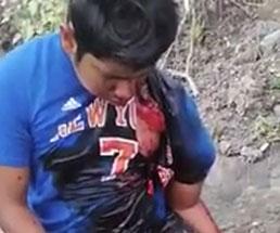 事故に遭い左腕がヤバいことになってる重傷な男性の姿が痛々しすぎる…
