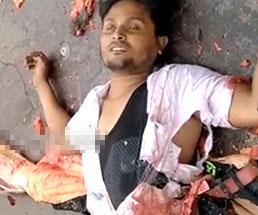 車に轢かれ身体の半分がグチャグチャになってしまった男性…