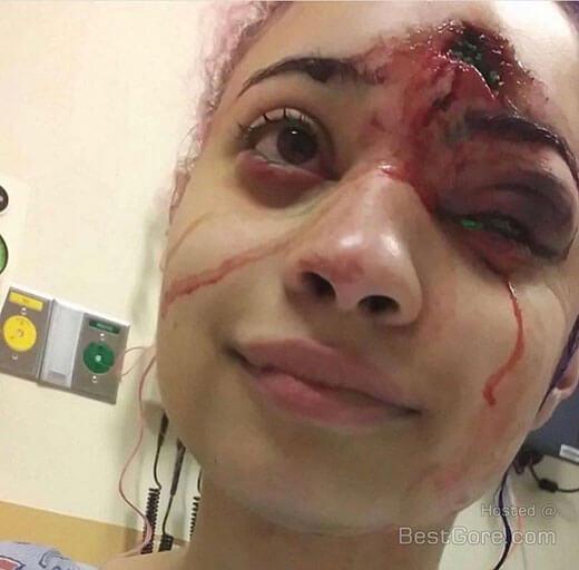 ジョージ・フロイド事件の抗議者である女性が受けた警察による残虐行為