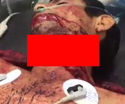 【閲覧注意】首の半分近くまで切断されても生きている男性の姿がグロすぎる…