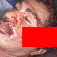 マチェーテで殺された男性の状態を詳しく見ていく…