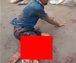 交通事故の凄惨な現場…大怪我をした人や頭が潰れている人まで…