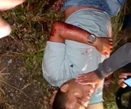 切断された左太ももをベルトで止血されてる男性が苦しんでる姿…