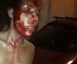 男達に殴られて血まみれの状態でおっぱい丸出しな女性