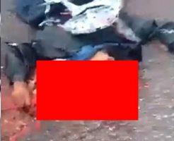 事故で頭がぐちゃっと潰れた男性の死体