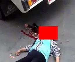 トラックに轢かれてしまった女性の頭部は…これは不運の事故だったとしか言えない