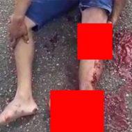 大怪我を負った人をこうやって撮影する人は何を考えてるんだろう…