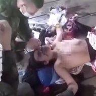 顔面で何かが爆発したらしい女性が美乳を晒して治療を受ける