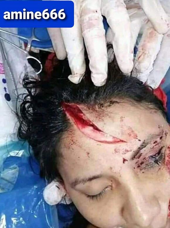 レイプされ身体を切り裂かれた女性の姿が酷すぎる件…