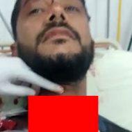 事故で喉が裂けてしまった男性、骨まで丸見えに…