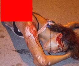 事故で身体が半分になってしまった女性の遺体…