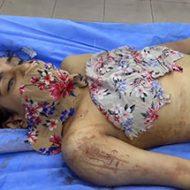 【閲覧注意】剖検前の女性の死体をカメラに記録していく