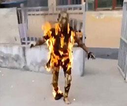 火事から自力で出てきた男性は火だるま状態