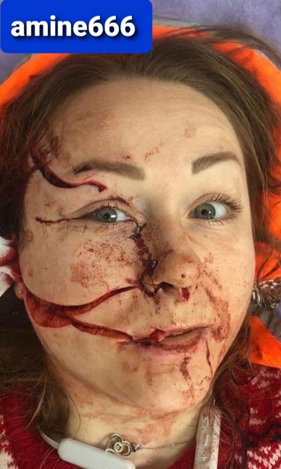 酔っぱらった夫に顔面を切り裂かれた女性の姿がこちら…