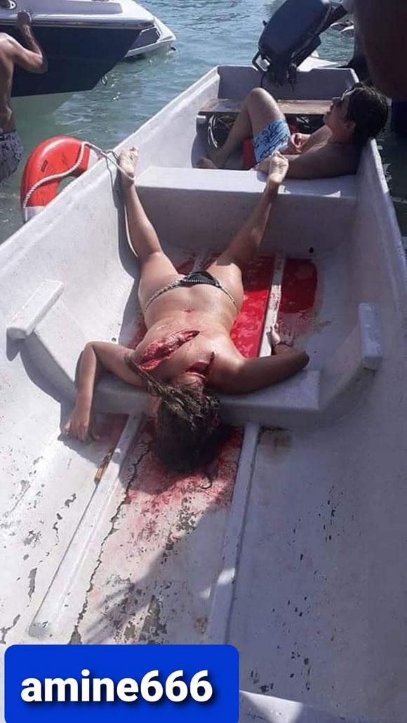 美女がボートのプロペラに巻き込まれた姿が痛々しすぎる…