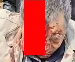 おじいさんが事故で顔面の皮がベロッと…