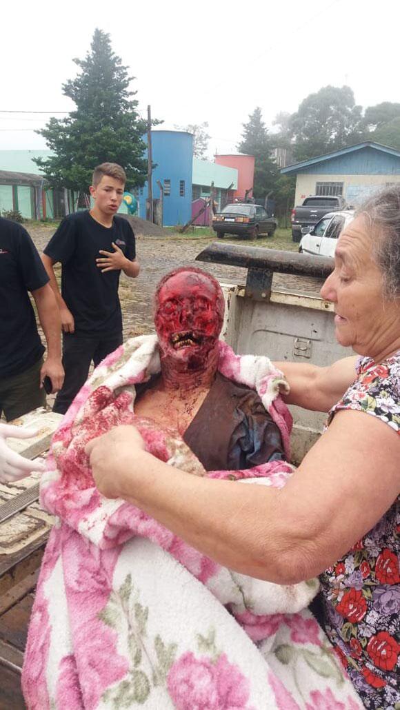 【閲覧注意】ピットブルに襲われた老人の顔面がヤバい…