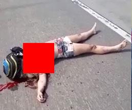 事故ったカップルが瀕死の状態…彼女はなぜかおっぱい丸出しw