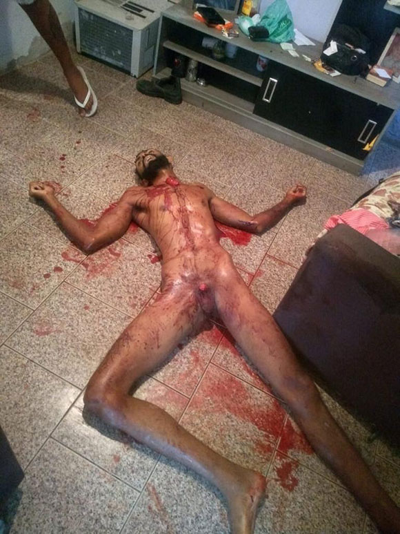 妻によってペニスを切り取られて殺された男性の姿がこちら…