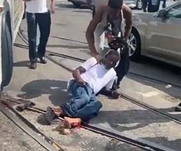 バスに両足を潰されグチャグチャにされてしまった男性…