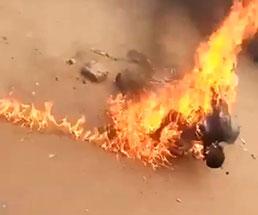 生きたまま燃やされた男がボロボロな身体に追い打ちを受ける…