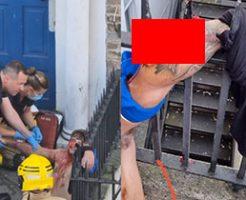 2階から落下した男性の腕が鉄格子にぶっ刺さってグロいことに…