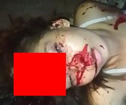 事故で頭パックリいっちゃってる美女の残酷な姿…