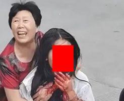 バイクで事故に遭った女の子の顔は見るも無残な…