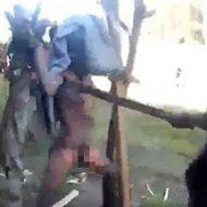 全身火傷状態で全裸拘束された女性が受ける拷問がこちら