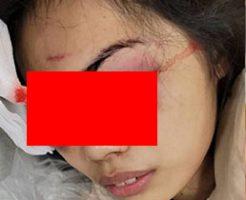 マスクを付けていなかった女性店員が男に襲われ目ん玉を攻撃された結果…