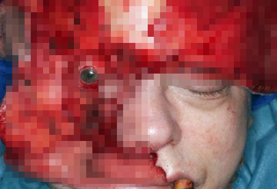 【グロ画像】顔これ08~顔面グロ死体これくしょん~【画像枚】