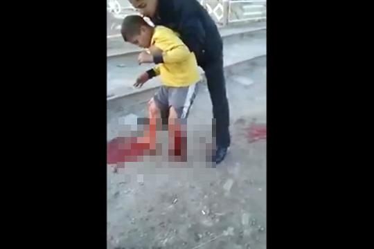 【グロ動画】紛争地では子供の足くらいすぐ無くなる・・・※閲覧注意